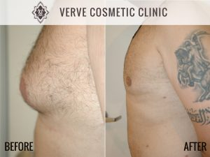 Before & After Photo - Liposuction