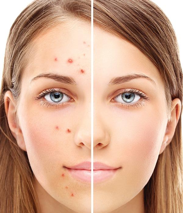 verve_acne