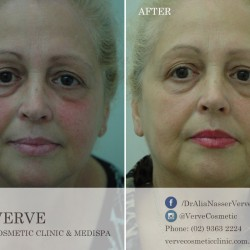 VCC_before-after-template_20141028