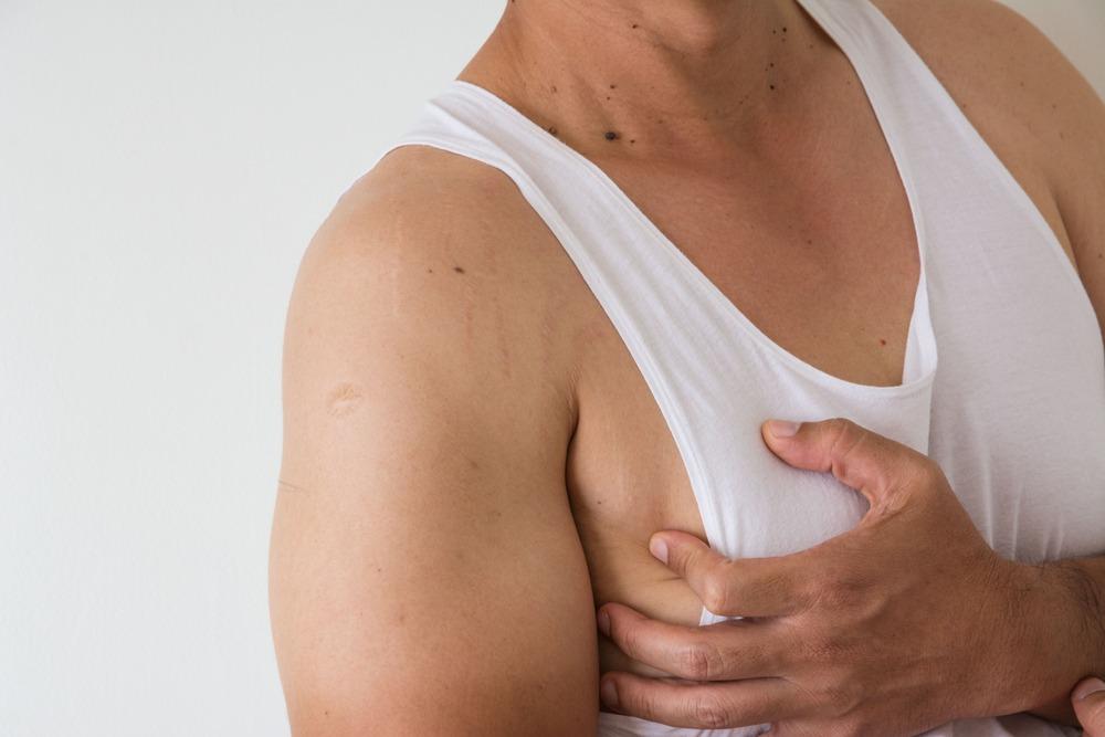 gynecomastia - male breast reduction - Verve Sydney