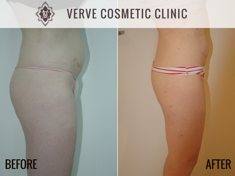 Liposuction Verve