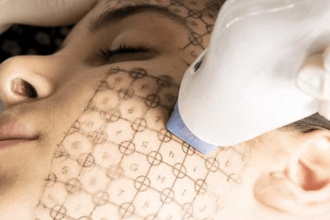 laser & light treatments at Verve Clinic Sydney